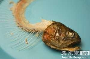 农妇频繁咳嗽呼吸不畅 一根鱼骨卡在气管10年不知