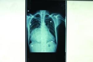 X光片显示巨大心脏填满了整个胸腔院方供图